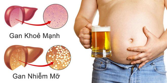 Sử dụng nhiều rượu bia gây hại cho gan